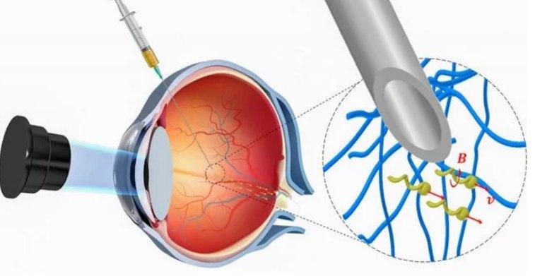 Медицинских нанороботов впервые ввели в человеческий глаз